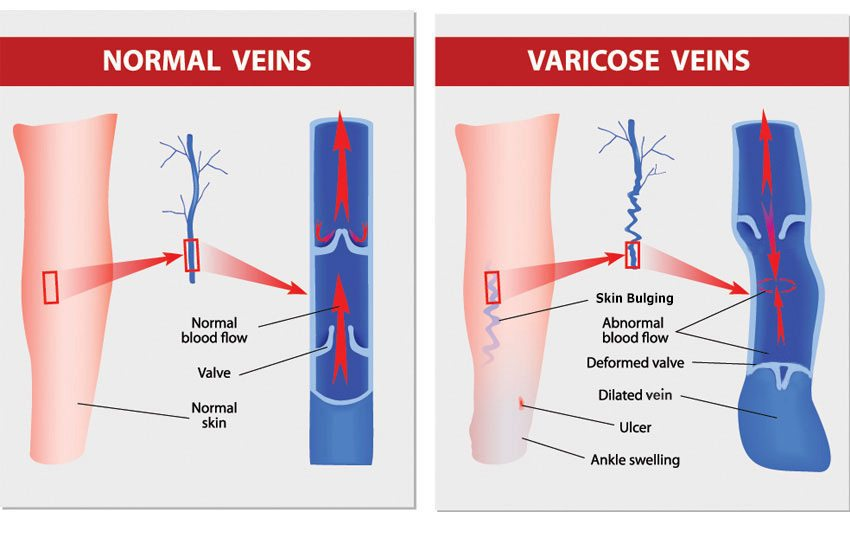 A diagram showing the difference between normal veins and those demonstrating venous insufficiency