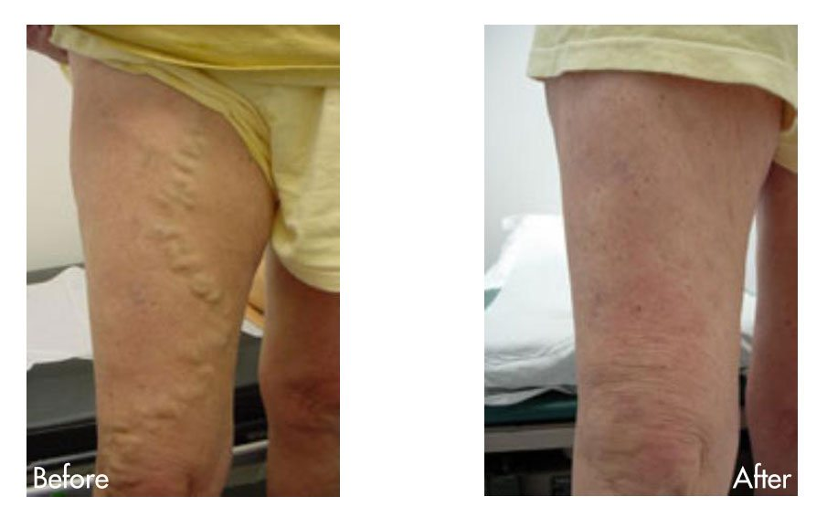 Varicose Vein Before & After Photo