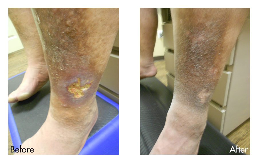 Venous Ulcers Before & After Photo