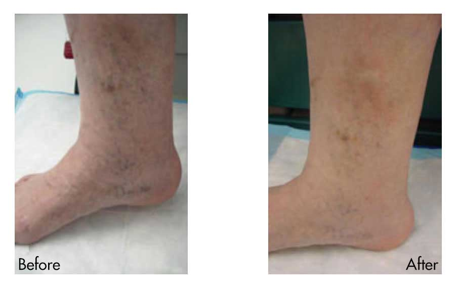 Spider Vein Before & After Photo