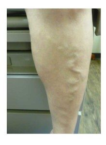 bulging-varicose-veins