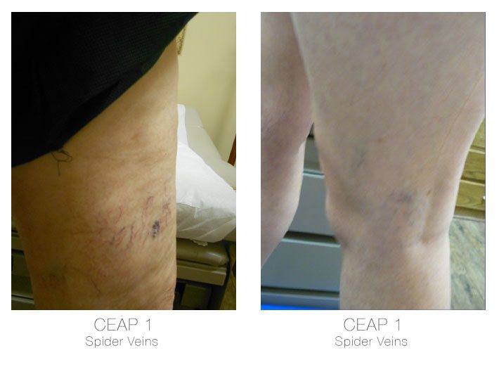 CEAP Spider Veins