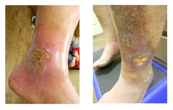 Leg Ulcers: Causes, Symptoms And Treatment