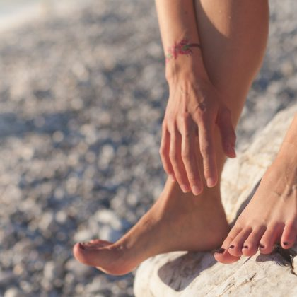 THE TRUTH ABOUT VARICOSE VEINS – WHAT OTHER CLINICS WON'T TELL YOU!